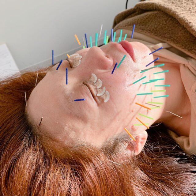 たるみ、むくみ、目の周りの小ジワ、顔の歪みなどにてお悩みで、美容鍼に来られている方です!  来院されるようになって、目が開くようになり、顔がスッキリしたと喜ばれています!  鍼をする事により、顔、身体の免疫反応を使い、細胞の活性化を促し、様々なお悩みに対応していきます!  花粉、PM2.5、黄砂により肌荒れしやすい季節になってきています! 肌の免疫力の向上、潤い、張りのある肌にして予防しましょう!  当院は、23:00最終受付、土日祝日も営業しており、仕事帰りが遅くても気兼ね無く来院出来ます!  DMからもご予約可能です!  久留米鍼灸整体サロン  #久留米鍼灸整体サロン#骨盤矯正#フェイシャルエステ#久留米鍼灸#久留米骨盤矯正#久留米整体#美容鍼#久留米美容鍼#小顔整体#久留米小顔マッサージ#美容#歪み改善#リフトアップ#顔のたるみ#久留米妊活#小顔#ほうれい線#マスク#美容針#ターンオーバー#肌荒れ予防#小顔矯正#シミ#クマ#目のクマ#顔のゆがみ#むくみ#肌荒れ#花粉症#肌質改善