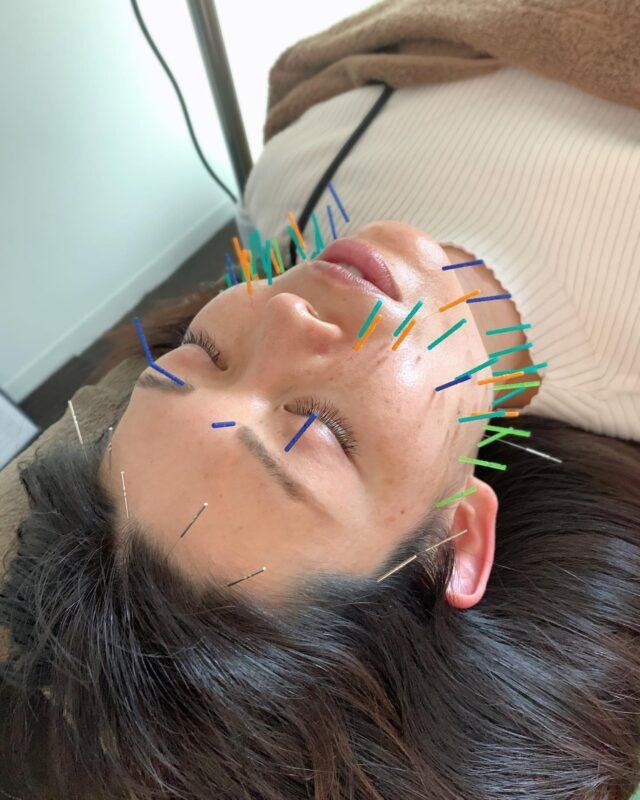 お顔のむくみ、乾燥肌にてお悩みで美容鍼に来られた方です!  梅雨時期はむくみやすい時期になっています! 東洋医学では、湿邪と言って、湿気が身体に溜まり、むくみやすい時期になって来ます! 美容鍼と、消化器系のツボなどを合わせてすると、浮腫が取れやすく、スッキリしますよ!  当院は、23:00最終受付、土日祝日も営業しており、仕事帰りが遅くても気兼ね無く来院出来ます!  DMからもご予約可能です!  久留米鍼灸整体サロン  #久留米鍼灸整体サロン#骨盤矯正#フェイシャルエステ#久留米鍼灸#久留米骨盤矯正#久留米整体#美容鍼#久留米美容鍼#小顔整体#久留米小顔マッサージ#美容#歪み改善#リフトアップ#顔のたるみ#久留米妊活#小顔#ほうれい線#マスク#美容針#ターンオーバー#肌荒れ予防#小顔矯正#シミ#眉間のシワ#東洋医学#顔のゆがみ#むくみ#たるみ#梅雨#顔のむくみ