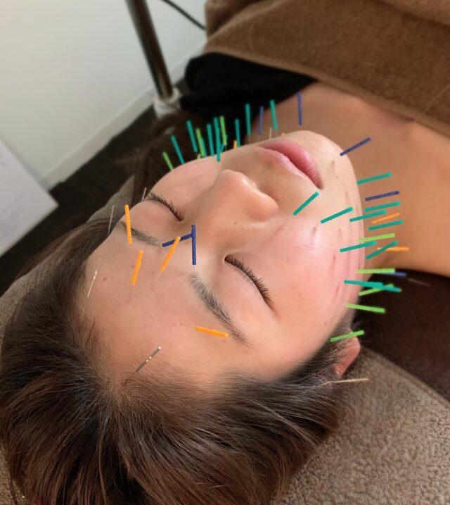 おでこの肌荒れ、顎下の浮腫などにてお悩みで、美容鍼に来られた方です!  肌荒れには、鍼をすることにより、血流促進をし、肌再生を促す事が出来ますので、早期改善につながります!  近頃は気圧、気候の変動から、頭蓋骨が広がったりしますので、顔が大きく見えたり、水が溜まり、浮腫みやすくなっておりますので、筋肉刺激、血流促進を主にやられる方が増えています!  当院は、23:00最終受付、土日祝日も営業しており、仕事帰りが遅くても気兼ね無く来院出来ます!  DMからもご予約可能です!  久留米鍼灸整体サロン  #久留米鍼灸整体サロン#骨盤矯正#フェイシャルエステ#久留米鍼灸#久留米骨盤矯正#久留米整体#美容鍼#久留米美容鍼#小顔整体#久留米小顔マッサージ#美容#歪み改善#リフトアップ#顔のたるみ#久留米妊活#小顔#ほうれい線#肩こり#美容針#ターンオーバー#肌荒れ予防#小顔矯正#シミ#しわ#代謝促進#顔のゆがみ#むくみ#たるみ#二重顎#おでこの肌荒れ